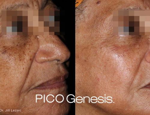 What is PICO Genesis?